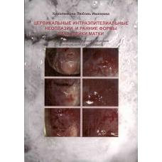 Цервикальные интраэпителиальные неоплазии и ранние формы рака шейки матки: клинико-морфологическая концепция цервикального канцерогенеза