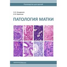 Патология матки. Руководство для врачей. 2-е издание