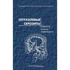 Опухолевые серозиты: плевриты, асциты, перикардиты